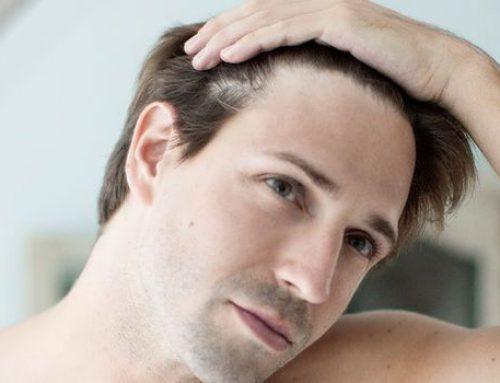 علت ریزش مو و درمان آن